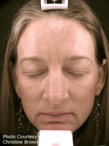 Activefx Fractional Laser Skin Resurfacing Dallas Tx