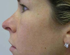 ActiveFX Laser Skin Resurfacing Dallas