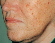 ActiveFX Skin Resurfacing Dallas