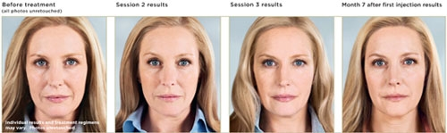 Sculptra Dallas TX Before and After Treatment