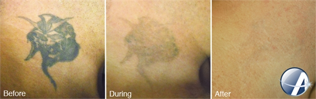 Laser Tattoo Removal, Dallas TX