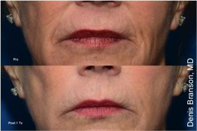 ThermiSmooth Skin Smoothing Laser Dallas