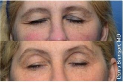 Before and After ThermiSmooth Skin Smoothing Dallas
