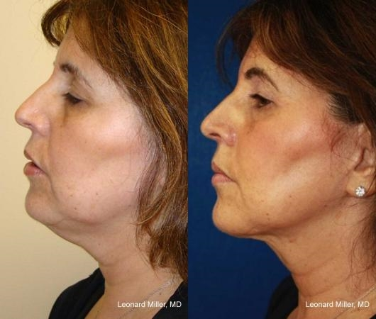 ThermiTight Skin Tightening Laser Dallas