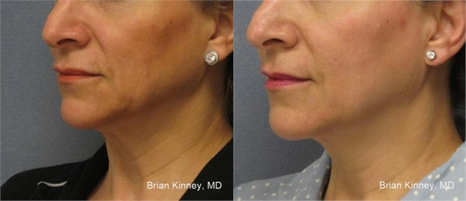 Before and After ThermiTight Skin Tightening Laser Dallas