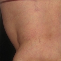 Sclerotherapy After Asclera