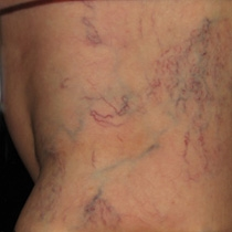 Sclerotherapy Before Asclera