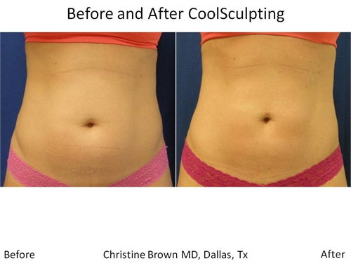 Coolsculpting Dallas Before and After