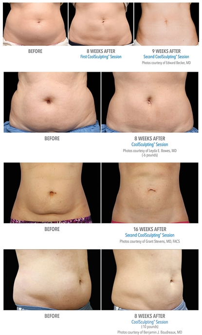 Before and After CoolSculpting images