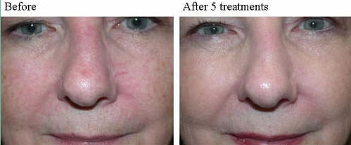 Ipl Treatment Dallas Skin Rejuvenation Dallas Tx
