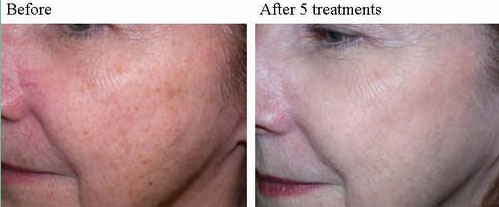 IPL photo rejuvenation Dallas