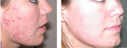 IPL photorejuvenation before and after