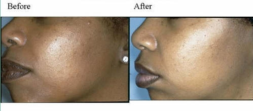 Chemical Peels Dallas