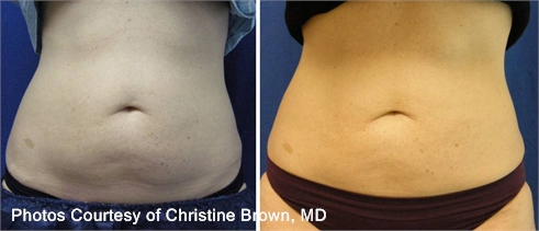 CoolSculpting Fat Reduction Dallas