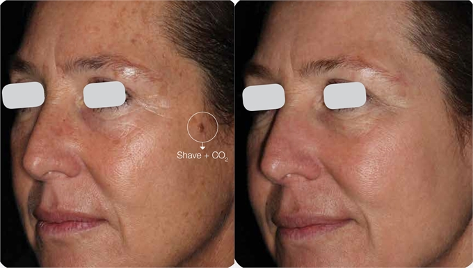 Resurfx Anti Aging Treatment Dallas Tx