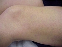 Sclerotherapy After Varicose Veins