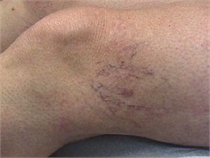Sclerotherapy Before Varicose Veins