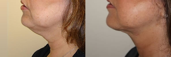 Before and After ThermiTight Skin Tightening Laser